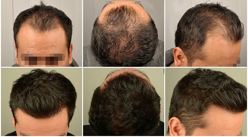 هزینه کاشت مو بدون جراحی