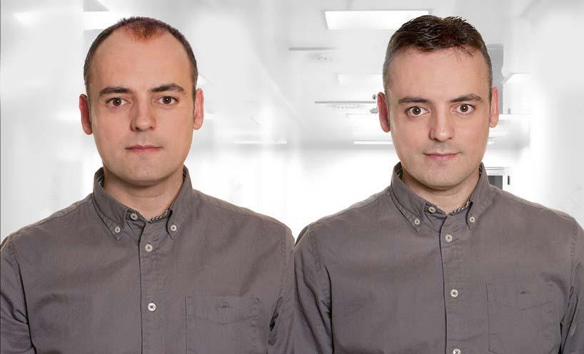 14 بهبود ریزش مو با پی آر پی PRP