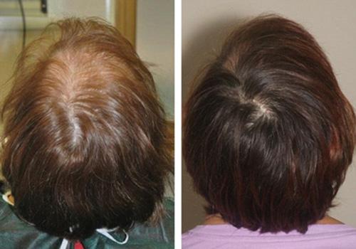 17 بهبود ریزش مو با پی آر پی PRP