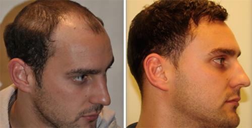 18 بهبود ریزش مو با پی آر پی PRP
