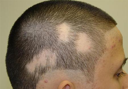 36 راههای بهبود ریزش موی سر در زنان و مردان