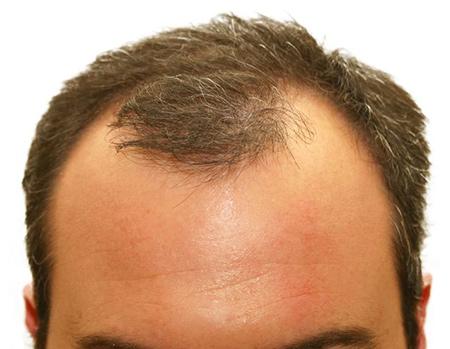 37 راههای بهبود ریزش موی سر در زنان و مردان