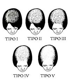 38 راههای بهبود ریزش موی سر در زنان و مردان
