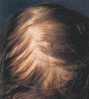 39 راههای بهبود ریزش موی سر در زنان و مردان