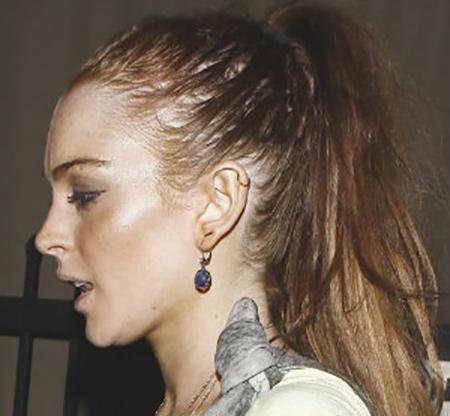 41 راههای بهبود ریزش موی سر در زنان و مردان