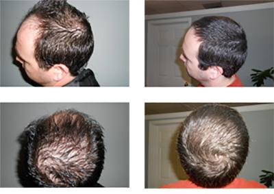 44v لیزرتراپی مو برای بهبود ریزش مو