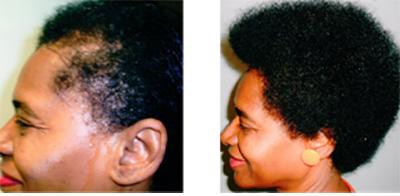 45v لیزرتراپی مو برای بهبود ریزش مو