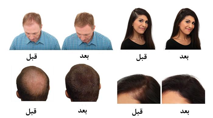 g27 راههای تقویت؛ رشد و پرپشت شدن مو