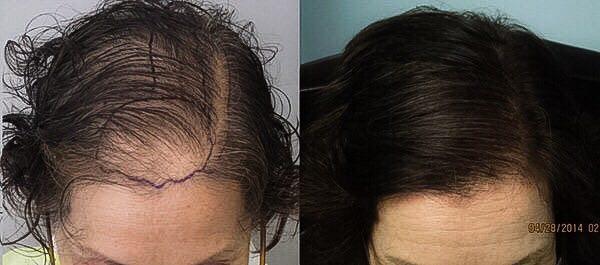 هزینه کاشت مو برای خانمها