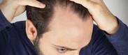 ریزش مو تا چه سنی