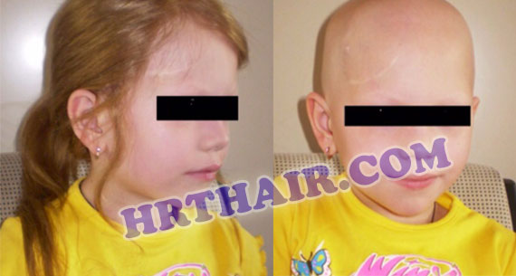 Gallery of Hair Restoration of Specific Diseases (HRT)