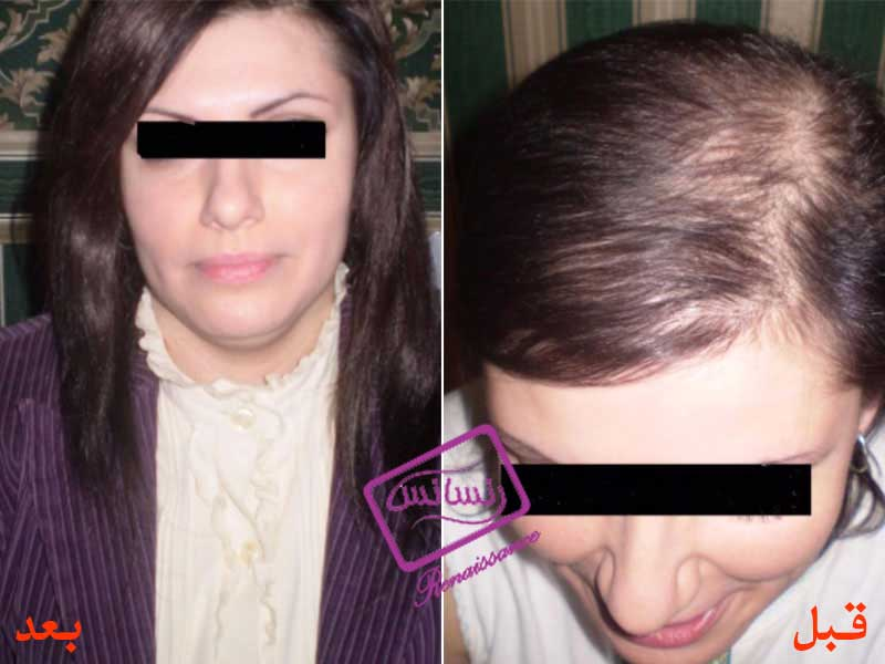 Hair Restoration of Specific Diseases (HRT)