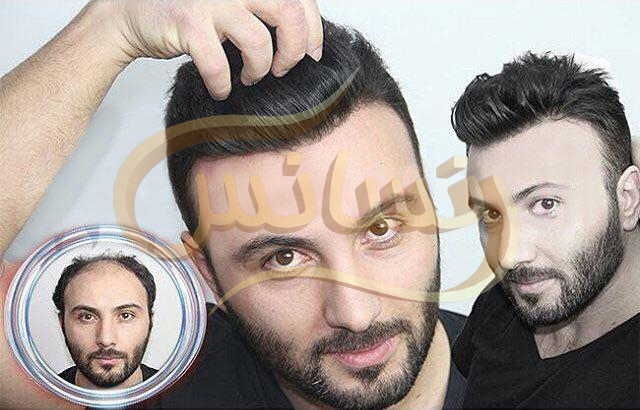 Hair restoration by HRT