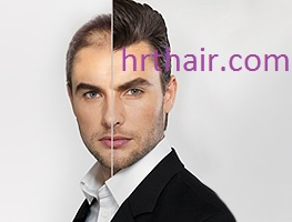 Hair Restoration of Specific Diseases